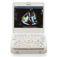 2016 Philips CX50 Ultrasound Scanner Machine System