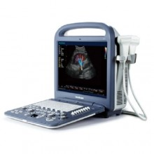 SonoScape S2 Color Doppler Ultrasound Scanner